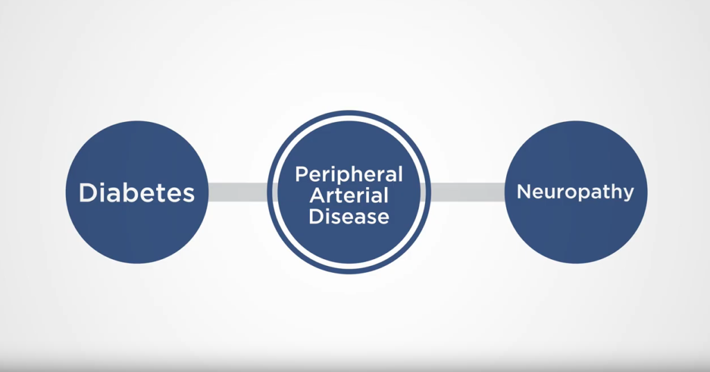 Diabetes, Neuropathy, and Peripheral Artery Disease