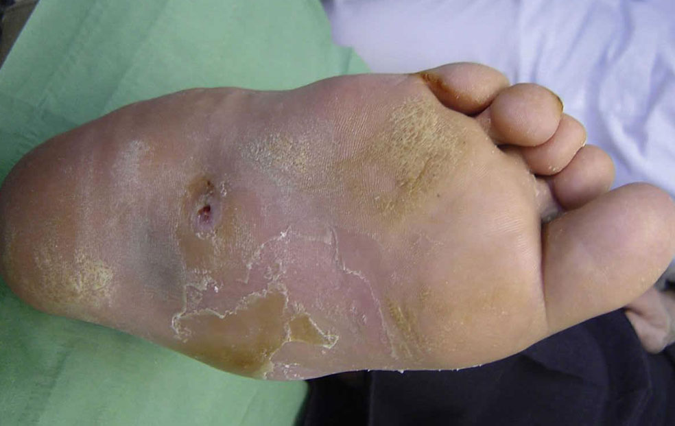PAD Foot Ulcers and Wounds